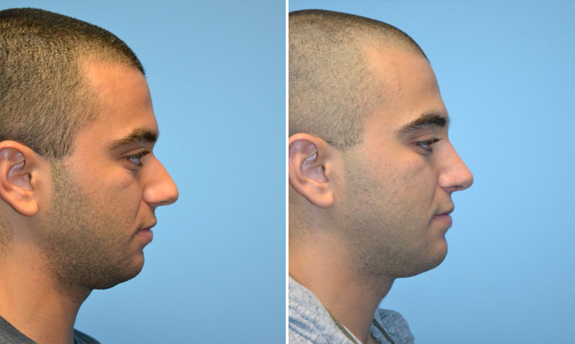before-after-rhino-male-1-1