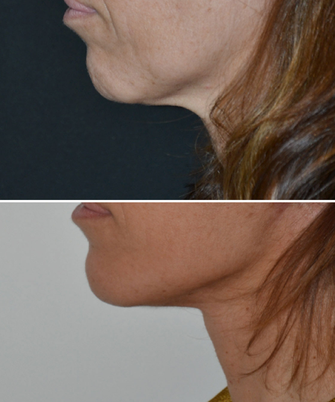 imagn-gallery-neck-lift-a