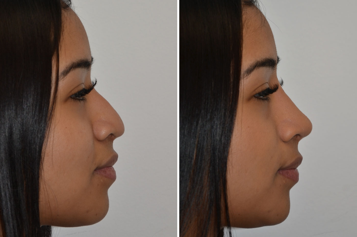 gallery-non-surgical-rhinoplasty-1-1
