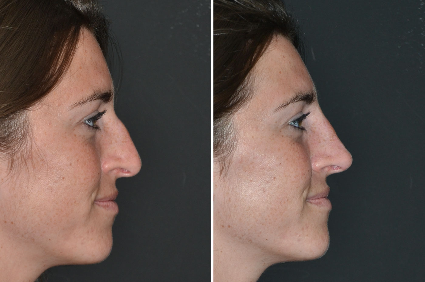 gallery-non-surgical-rhinoplasty-2-1